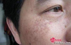 脸上长斑别轻视,都是妇科疾病的警示!祛斑关键得从根源调理开始