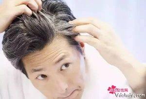 白头发越来越多,你找到原因了吗?可以吃这几样美食改善白发问题