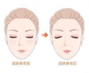"""对抗衰老从""""头""""开始  Wennil推出全新健发美容梳"""