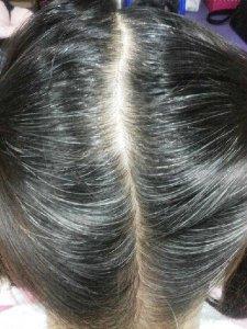 白头发多不要紧,平时多吃这几样,促生黑发不尴尬