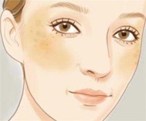 少慢修护霜:如何诊断鉴别黄褐斑与其他相似病症