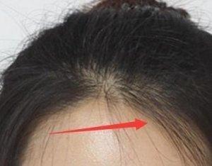 扎完头发总是有很多小碎发还很难看?教你一方法,快速抚平小碎发