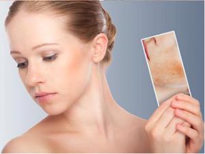 如何去除脸上的黄褐斑,最有效祛除黄褐斑的方法