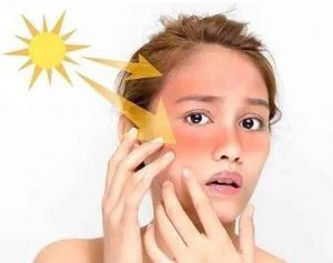 炎炎夏日,敏感肌肤要用天然草本植物护肤品--碧研菲水分膨润�ㄠ�霜