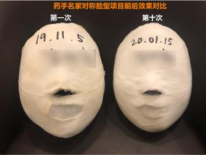韩国药手名家,引领健康瘦脸新时尚