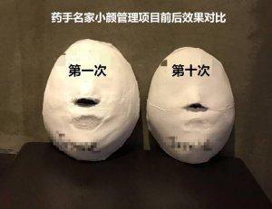 药手名家的新型健康徒手瘦脸方法,还不赶紧试试?