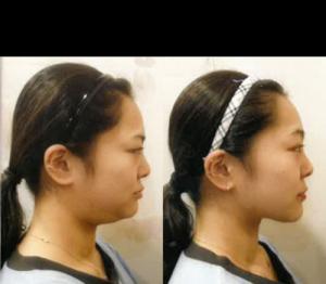 不需开刀的脸型矫正,小脸管理,皮肤管理轻松搞定